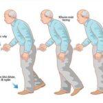 Các biến chứng thường gặp ở người bị bệnh Parkinson